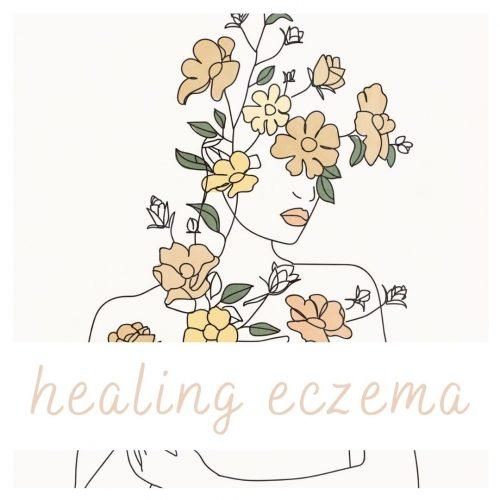 natural eczema solutions